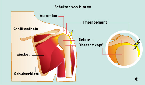 Physiotherapie Rostock | Inpingement- Syndrom: Wenn die Schulter ...